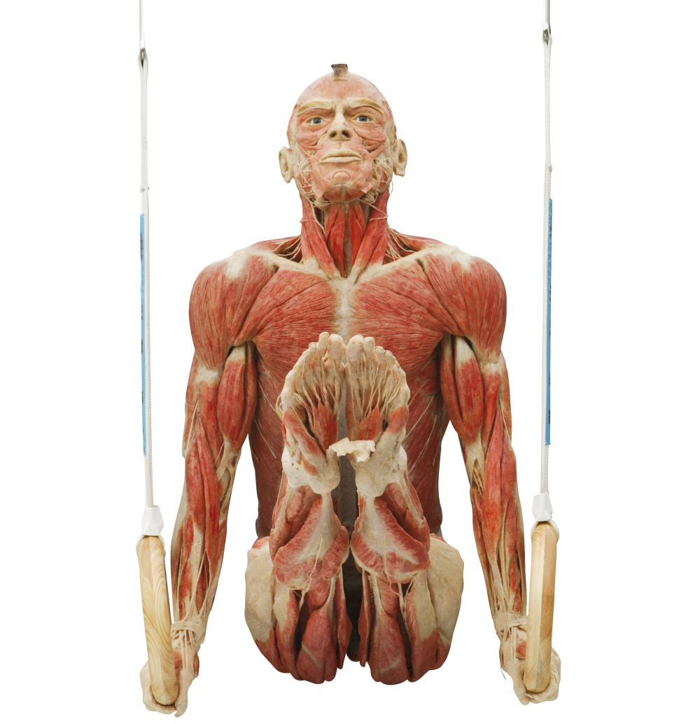 Plastinated Body